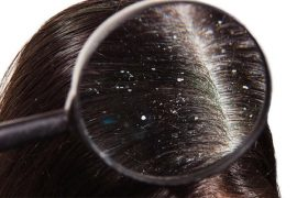 Common Causes of Dandruff _ Afro Glamour Cosmetics