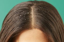 How to Get Rid of Dandruff- Afro Glamour Cosmetic